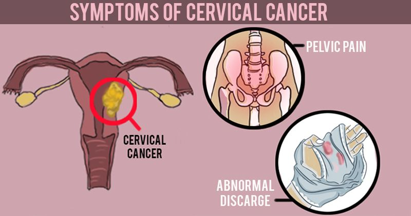 7 Common Signs Of Cervical Cancer That Most Women Ignore