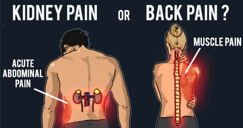 Kidney Pain Vs Back Pain How To Tell The Difference