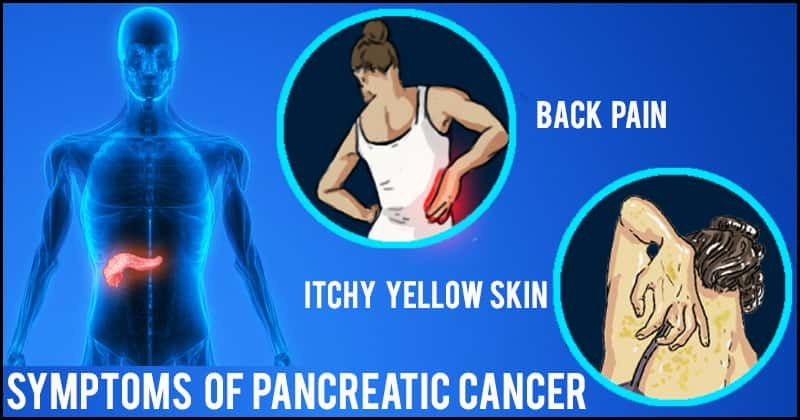 6 Warning Signs Of Pancreatic Cancer That You Should Watch