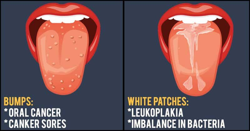 7 Changes In Your Tongue That Are Warning Signs Of Serious